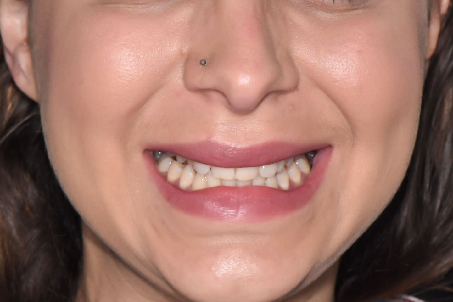 Composite-veneers-by-tailored-teeth-dental-and-cosmetics-connie-2