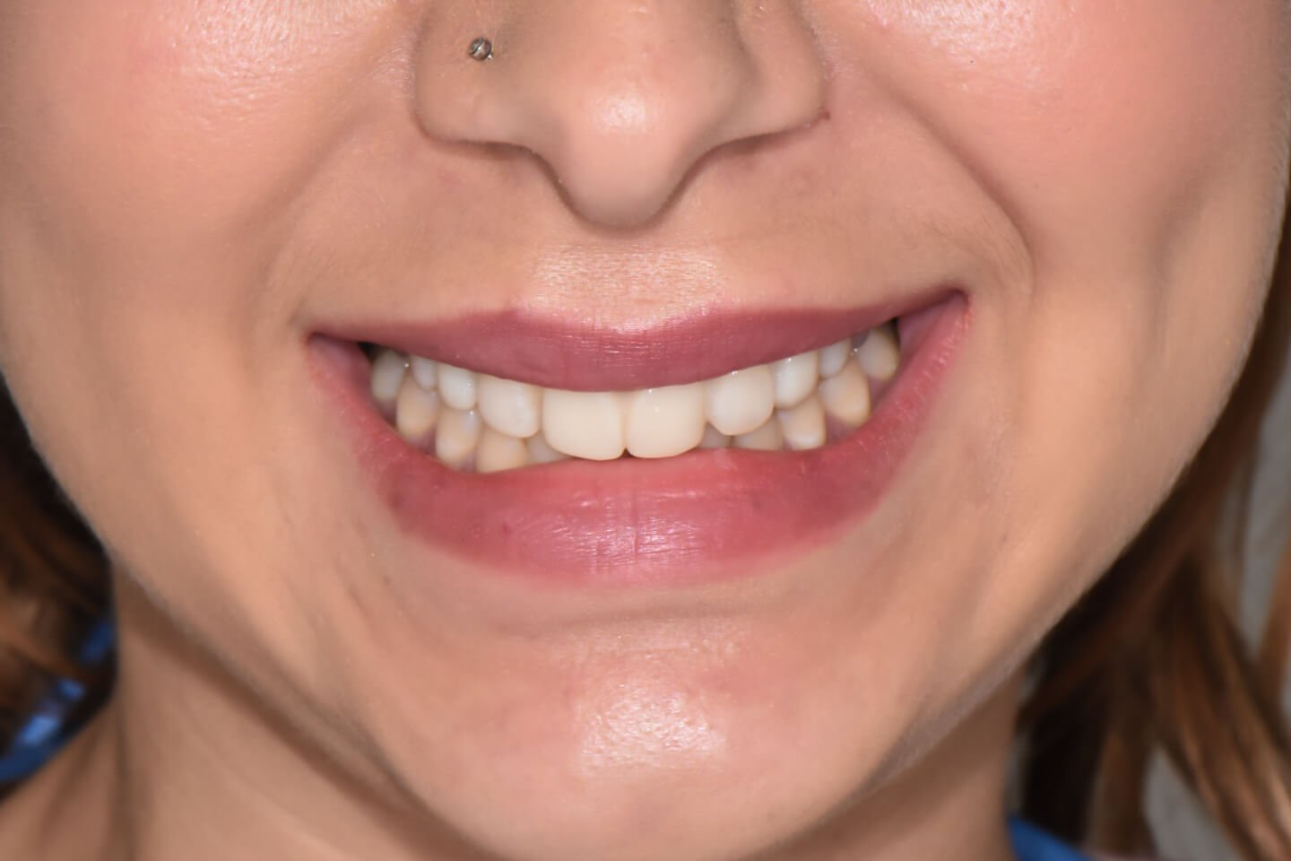 Composite-veneers-by-tailored-teeth-dental-and-cosmetics-connie-3
