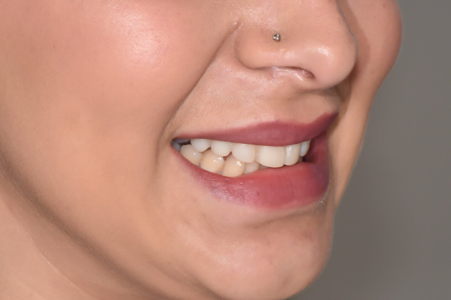 Composite-veneers-by-tailored-teeth-dental-and-cosmetics-connie-4