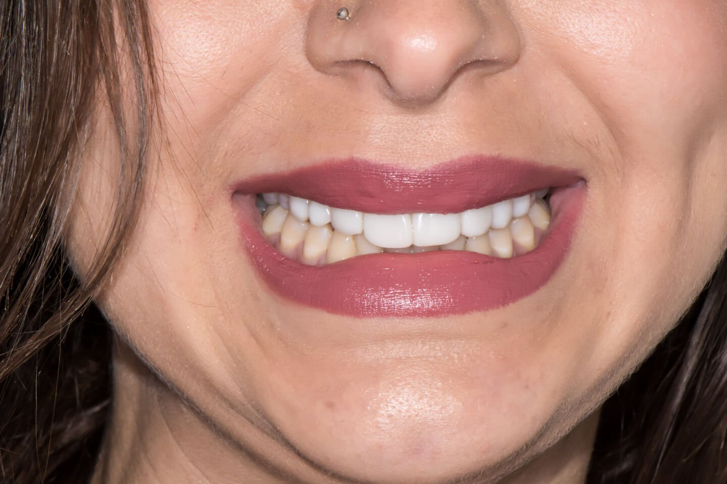 Composite-veneers-by-tailored-teeth-dental-and-cosmetics-connie-5