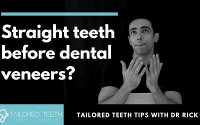 Do I have to straighten my teeth with braces before dental veneers?