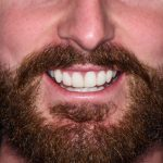 Adams-composite-veneer-photos-from-Tailored-Teeth-Dental-and-Cosmetics-in-Burwood-close-up-after