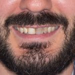 Edwards-Porcelain-Veneers-by-Tailored-Teeth-Dental-and-Cosmetics-1