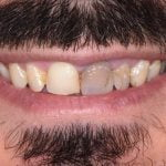 Edwards-Porcelain-Veneers-by-Tailored-Teeth-Dental-and-Cosmetics-2