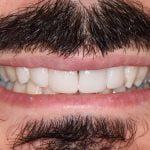Edwards-Porcelain-Veneers-by-Tailored-Teeth-Dental-and-Cosmetics-3