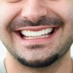 Porcelain-veneers-for-Harry-by-Tailored-Teeth-Dental-and-Cosmetics-9-2