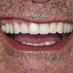 Nazihs-Porcelain-Veneers-by-Tailored-Teeth-Dental-and-Cosmetics-3