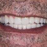 Nazihs-Porcelain-Veneers-by-Tailored-Teeth-Dental-and-Cosmetics-4