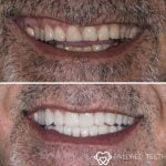 Nazihs-Porcelain-Veneers-by-Tailored-Teeth-Dental-and-Cosmetics-5